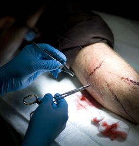 1090105_stitching_together_a_wound_1.jpg